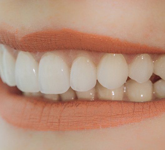 Close-up of smile improved by porcelain veneers