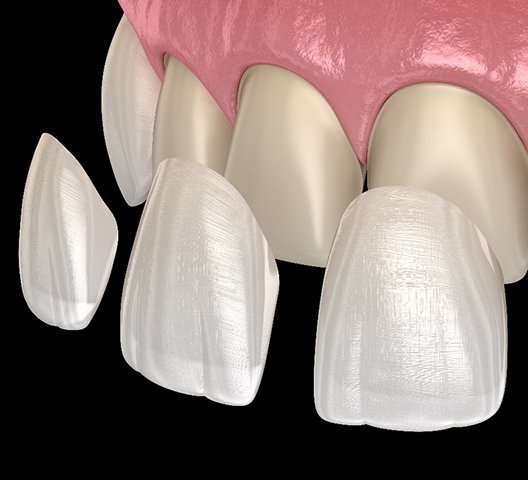 3D model of four porcelain veneers being placed on smile