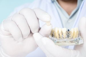 Close-up of hands holding model with dental implants and restorations